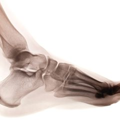 Can you do P90x3 with Three Broken Toes?